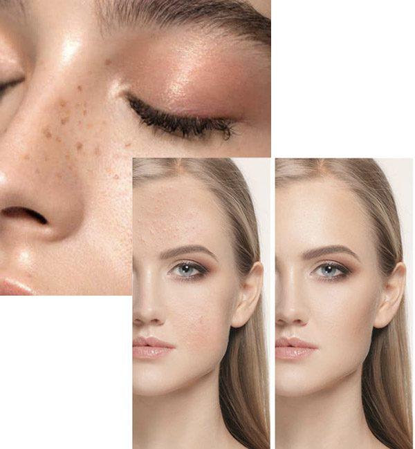 acne cream hemp